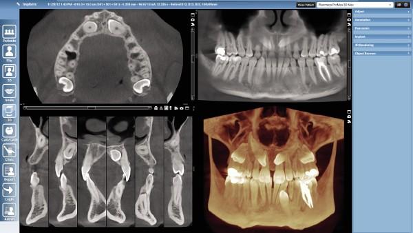 L'imagerie dentaire dans le Grésivaudan fait un bond en avant